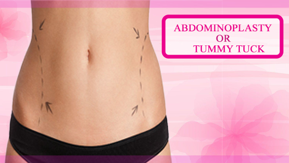 Abdominoplasty or Tummy Tuck - Cosmoarts Clinic